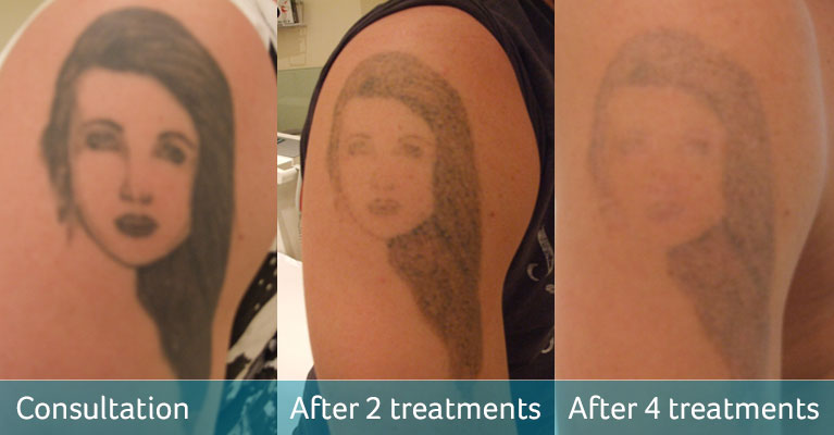 Female Face Arm Tattoo Cover Up Avalon Laser Beauty Clinic