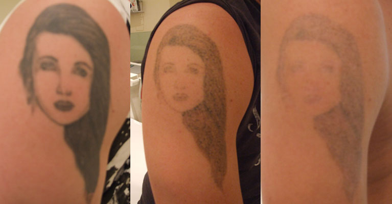 Female Face Arm Tattoo Cover Up