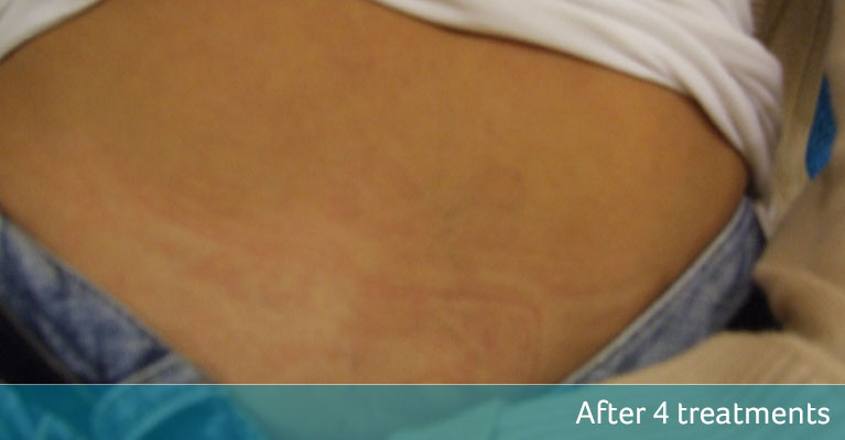 Stomach bow tattoo removal Croydon after 4 treatments