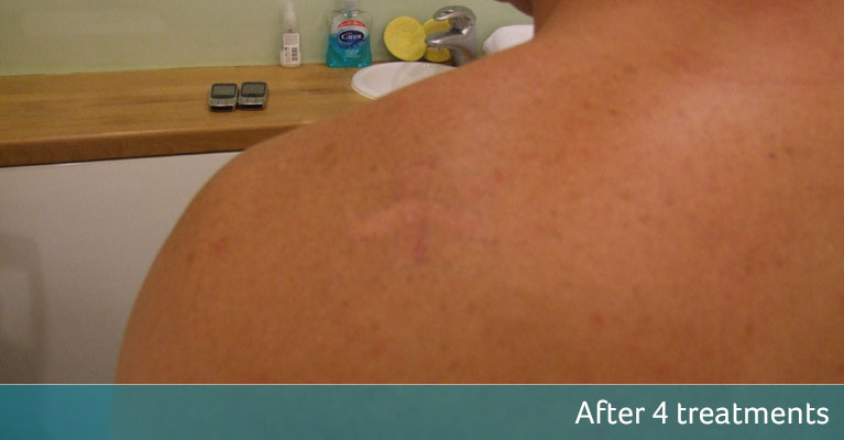 St Georges flag tattoo removal London after 4 treatments