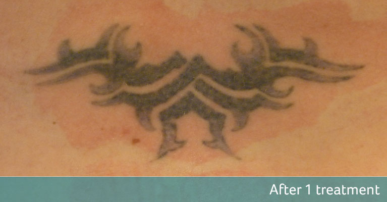 Lower Back Purple Tribal Tattoo Removal After 1 Treatment