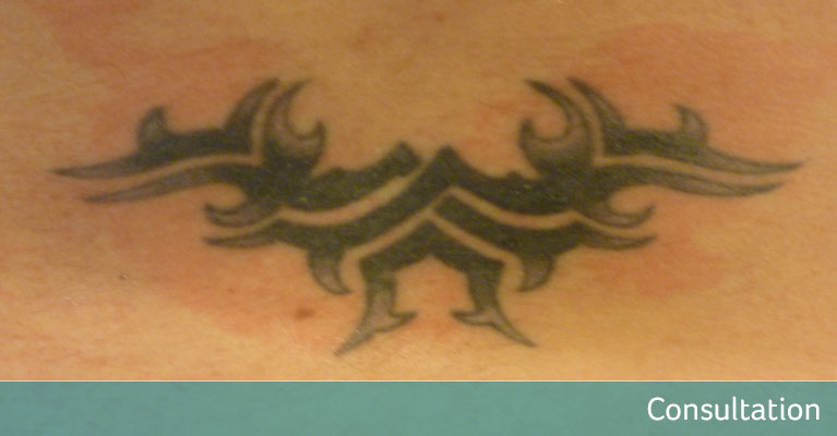 Lower Back Purple Tribal Tattoo Removal Sidcup - Avalon Laser ...