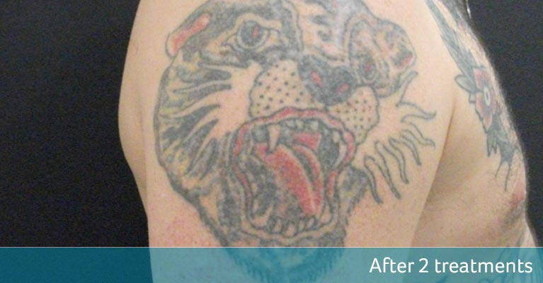 Arm traditional tiger tattoo removal after 2 treatments