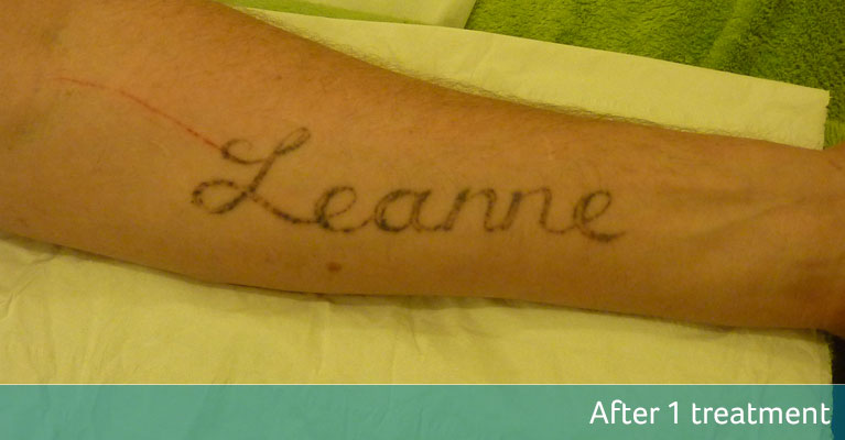Name tattoo removal Bromley after 1 treatment