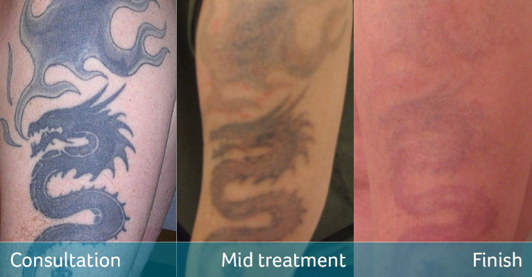 Dragon tattoo removal for cover up Bromley