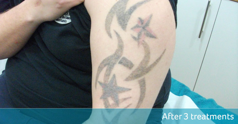 Tribal tattoo removal ready for cover up after 3 treatments