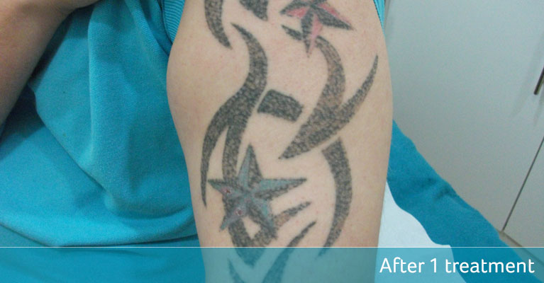 Tribal tattoo removal ready for cover up after 1 treatment