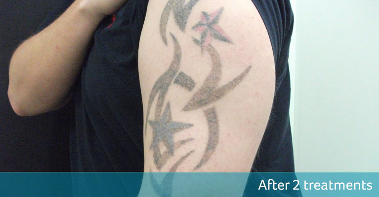 Tribal Tattoo Cover Up - Avalon Laser & Beauty Clinic