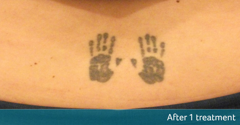 Lower back hands tattoo removal after 1 treatment
