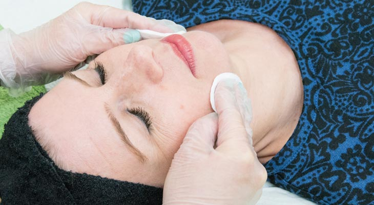 Facials Peels Resurfacers at Avalon Laser & Beauty Clinic