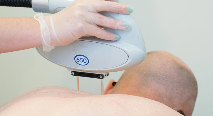 IPL Hair Removal at Avalon Laser & Beauty Clinic