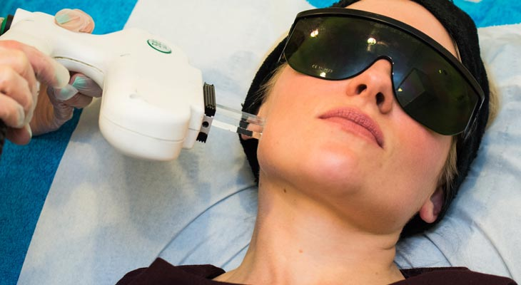 Skin Treatment IPL Rejuvenation at Avalon Laser & Beauty Clinic