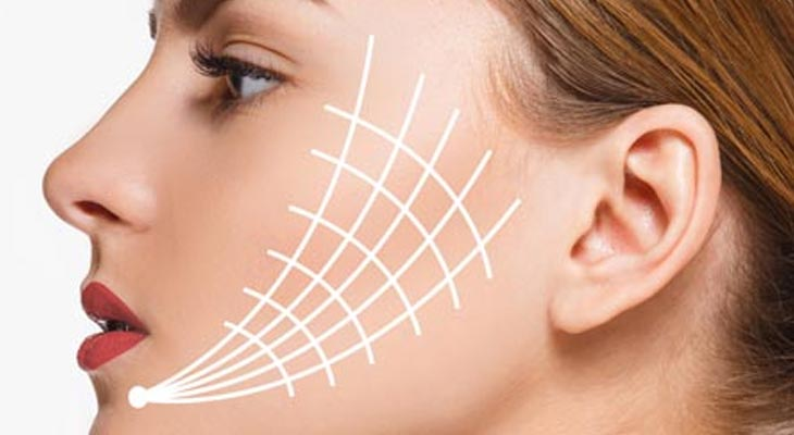 Thread Face Lifts at Avalon Laser & Beauty Clinic