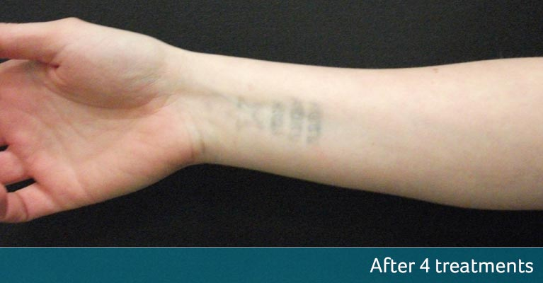 Wrist Tattoo Removal Orpington After 4 Treatments