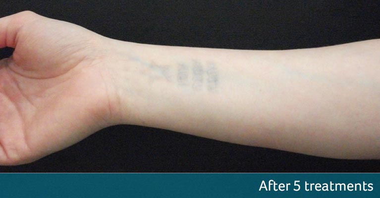 Wrist Tattoo Removal Orpington After 5 Treatments