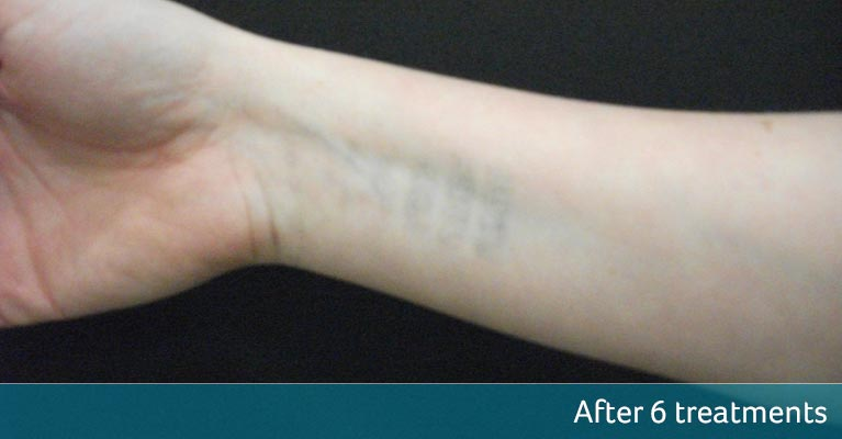 Wrist Tattoo Removal Orpington After 6 Treatments