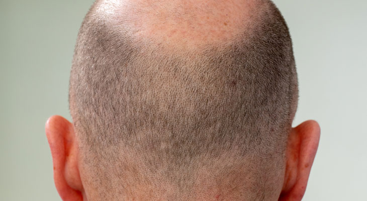 Scalp Micropigmentation at Avalon Laser & Beauty Clinic