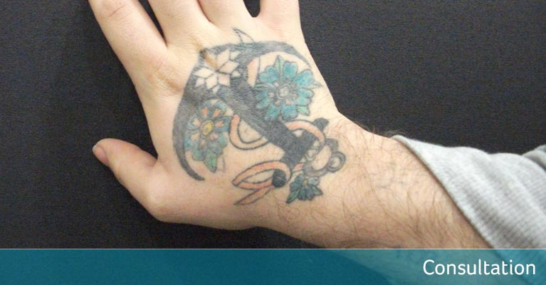 Nautical hand tattoo removal - consultation stage