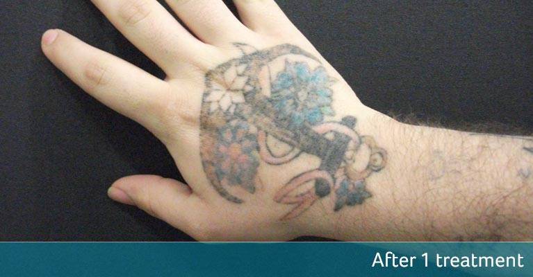 Nautical hand tattoo removal - after 1 treatment
