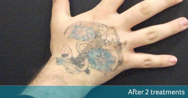 Nautical hand tattoo removal - after 2 treatments