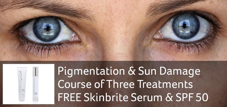 Pigmentation & Sun Damage offer